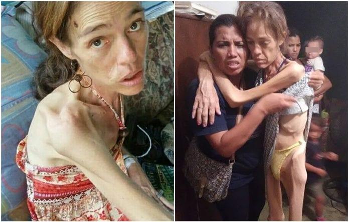 Yasmeli Parra, docente zuliana que falleció con severo cuadro de desnutrición