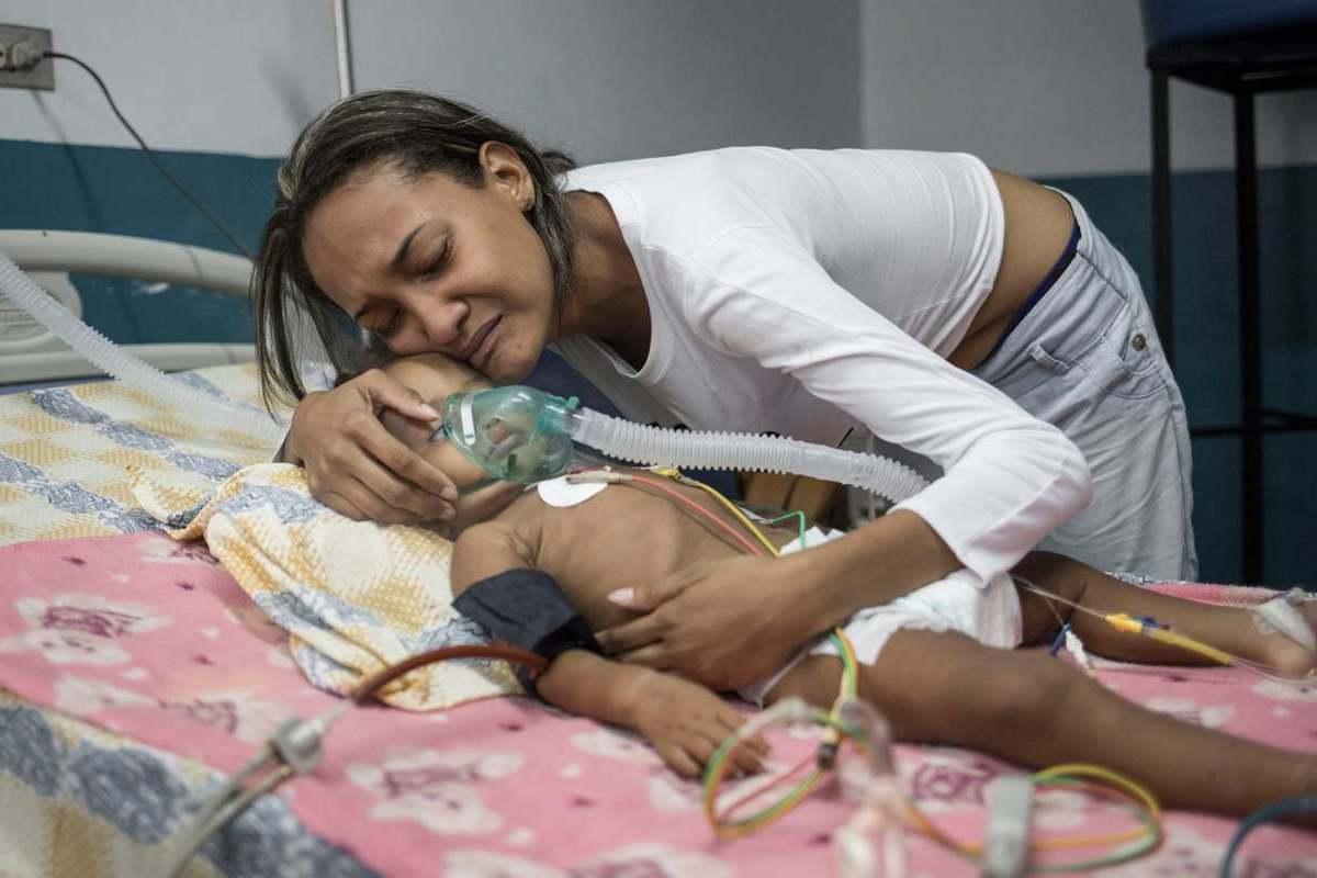 Desnutrición infantil severa en Venezuela (1)