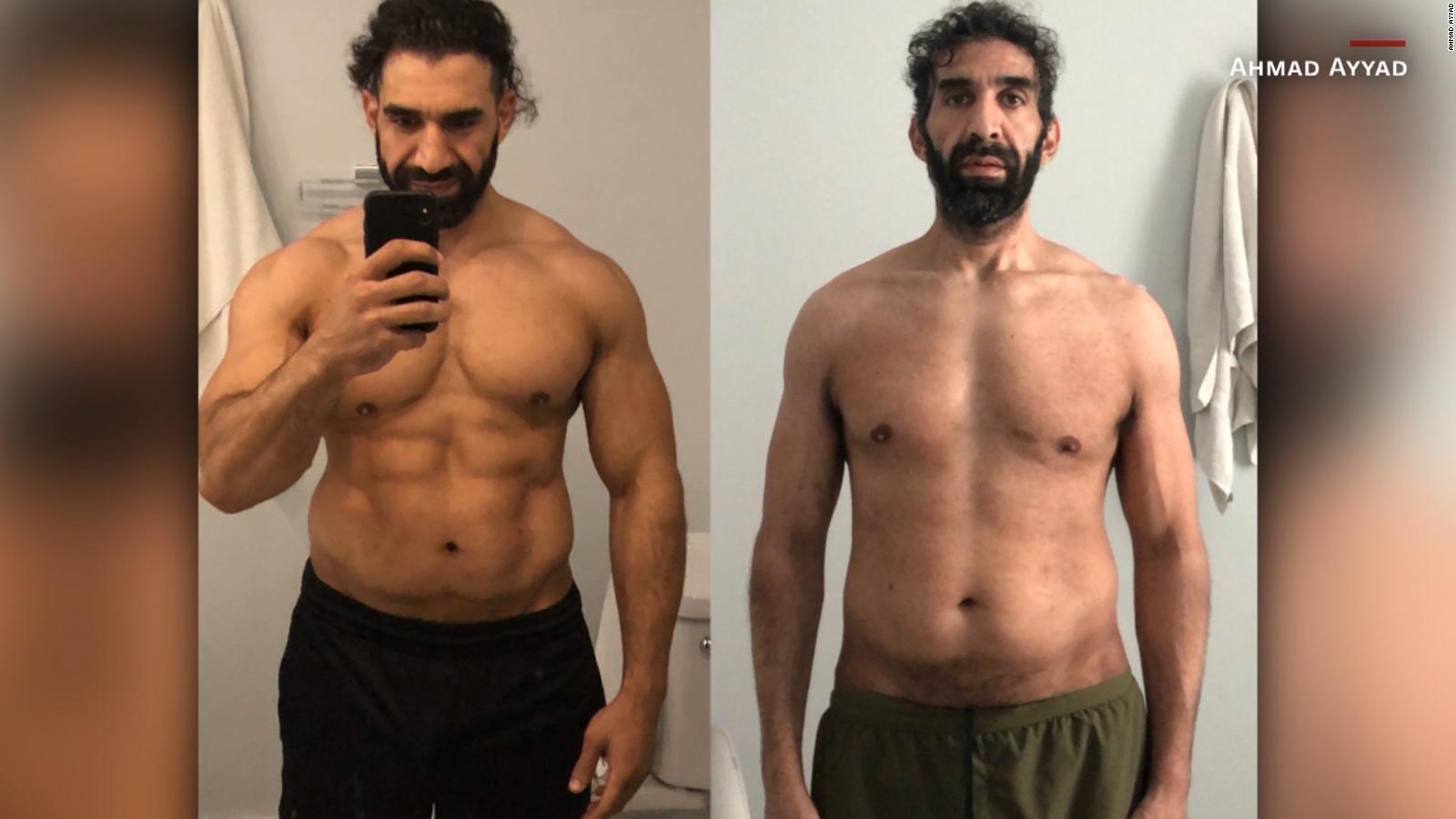 El drástico antes y después de un deportista con COVID-19 que estuvo 25 días en coma y bajó 27 kilos